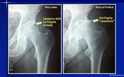 Artrosi dell'anca (Coxartrosi): cause e terapie