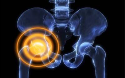 La Coxalgia: il dolore all'anca