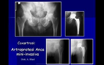 Chirurgia protesica d'anca mini-invasiva