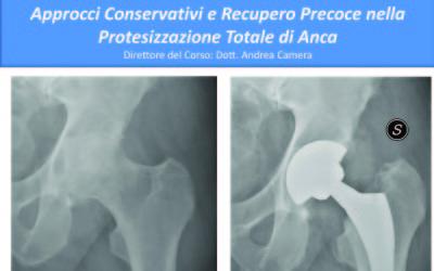 Chirurgia mininvasiva e recupero veloce dopo protesi d'anca.
